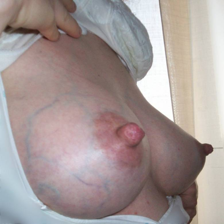 a pair of heavily veined milk-filled breasts whose enlarged and darkened teats are capped with thick and nicely distended nipples
